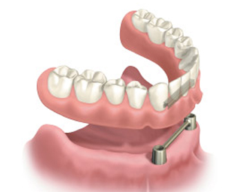 Diagram of a bar-retained implant overdenture with the prosthesis hovering above the implant bar.