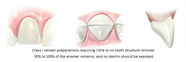 Diagram of Class I little to no porcelain veneer preparations. This classification was established by Beverly Hills accredited cosmetic dentist Dr. Brian LeSage.