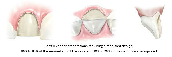 Diagram of Class II modified porcelain veneer preparations. This classification was established by Beverly Hills accredited cosmetic dentist Dr. Brian LeSage.
