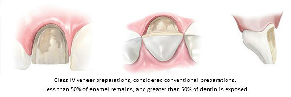 Diagram of Class IV conventional porcelain veneer preparations. This classification was established by Beverly Hills accredited cosmetic dentist Dr. Brian LeSage.