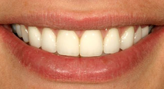 Dr. Brian LeSage Dentist Smile Gallery - Teeth after work