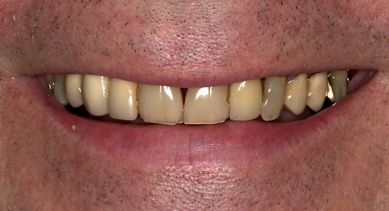 Dr. Brian LeSage Dentist Smile Gallery - Teeth before work