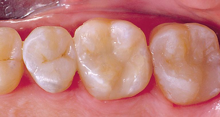 Dr. Brian LeSage Dentist Smile Gallery - Teeth after work
