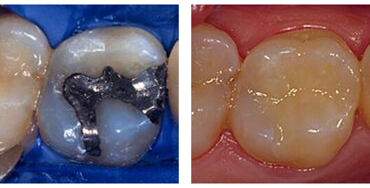 Before-and-after composite fillings; for holistic dentistry from Beverly Hills Dr. LeSage.