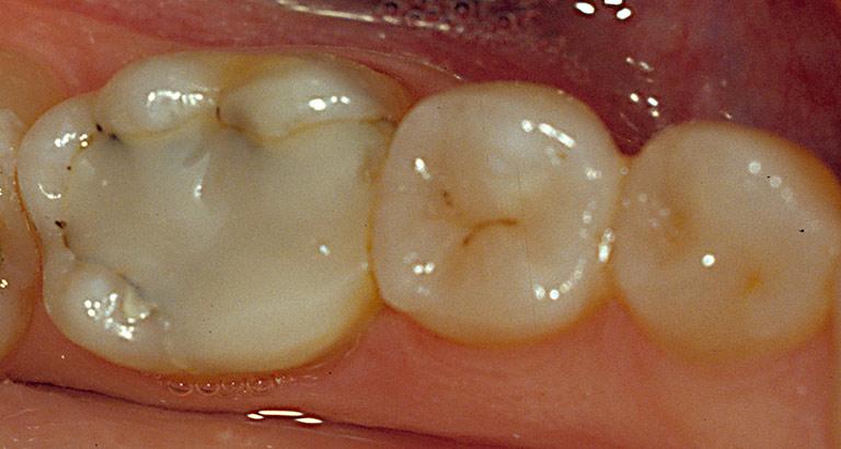 Dr. Brian LeSage Dentist Smile Gallery - Teeth before work