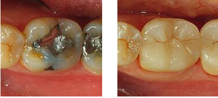 Before-and-after porcelain onlay photos from Beverly Hills accredited cosmetic dentist Dr. Lesage.