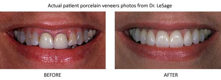 Before-and-after porcelain veneers photos from accredited fellow of cosmetic dentistry Brian LeSage, DDS