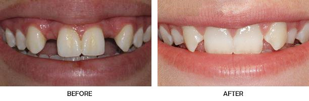 Before-and-after photos of missing lateral incisors, from mynewsmile.com