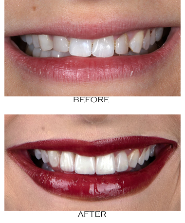 Porcelain veneers before-and-after photos from Beverly Hills cosmetic dentist Dr. Brian LeSage.
