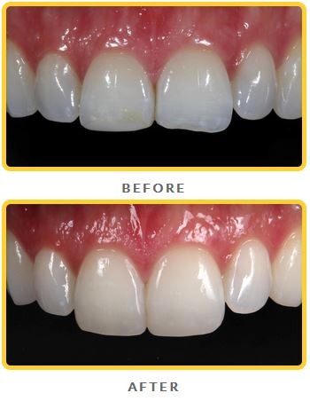 Before-and-after dental bonding photos from Brian LeSage, DDS