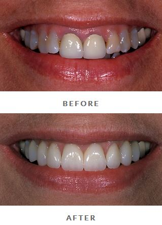 Before-and-after porcelain crowns photos