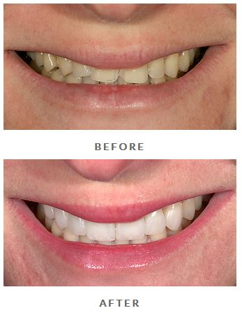 Before and after photos porcelain veneers photos from Brian Lesage, DDS