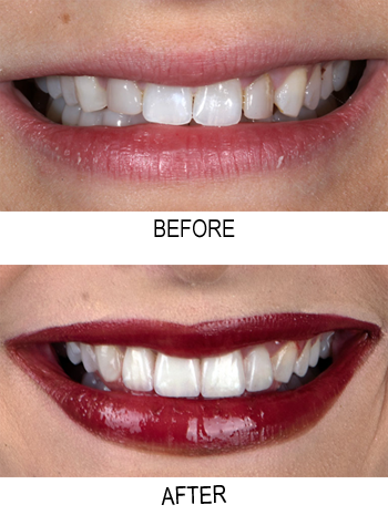 Porcelain veneers before and after photos from Beverly Hills cosmetic dentist Dr. Brian LeSage