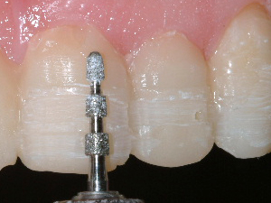 Depth-limiting diamond bur applied to teeth for porcelain veneer preparation